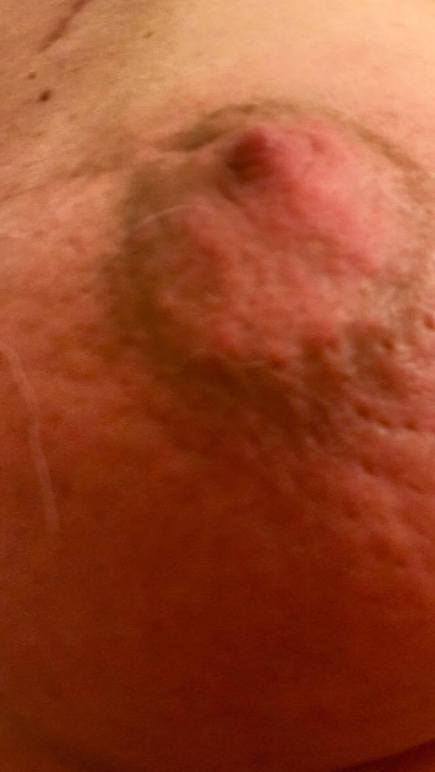 Burned boob